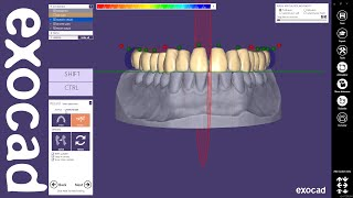 exocad Quick Guide: Designing a single arch denture