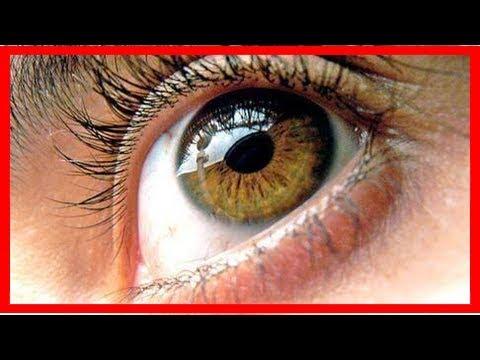 5 Remèdes Pour Le Syndrome Des Yeux Secs