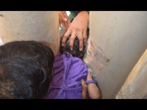 راولپنڈی: 3 سالہ بچی کا سر پلرز میں پھنس گیا