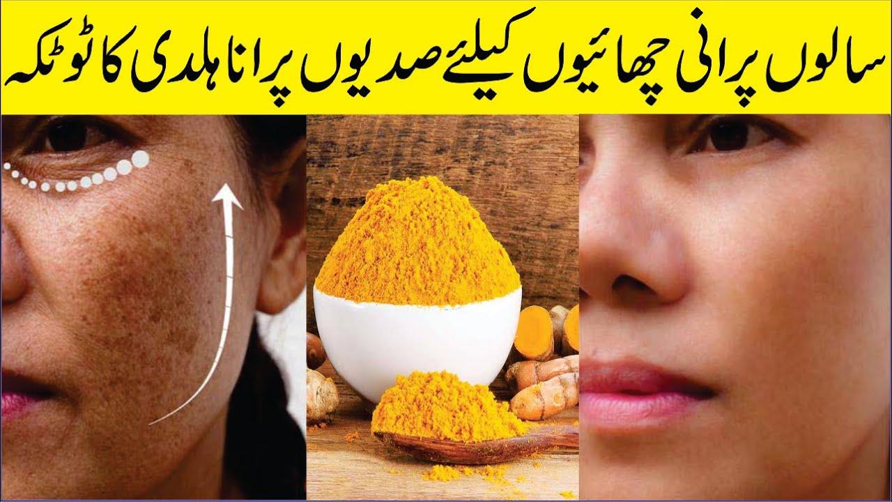 Turmeric Eliminated Pigmentation Thousand's Of Women: Beauty Tips In Urdu