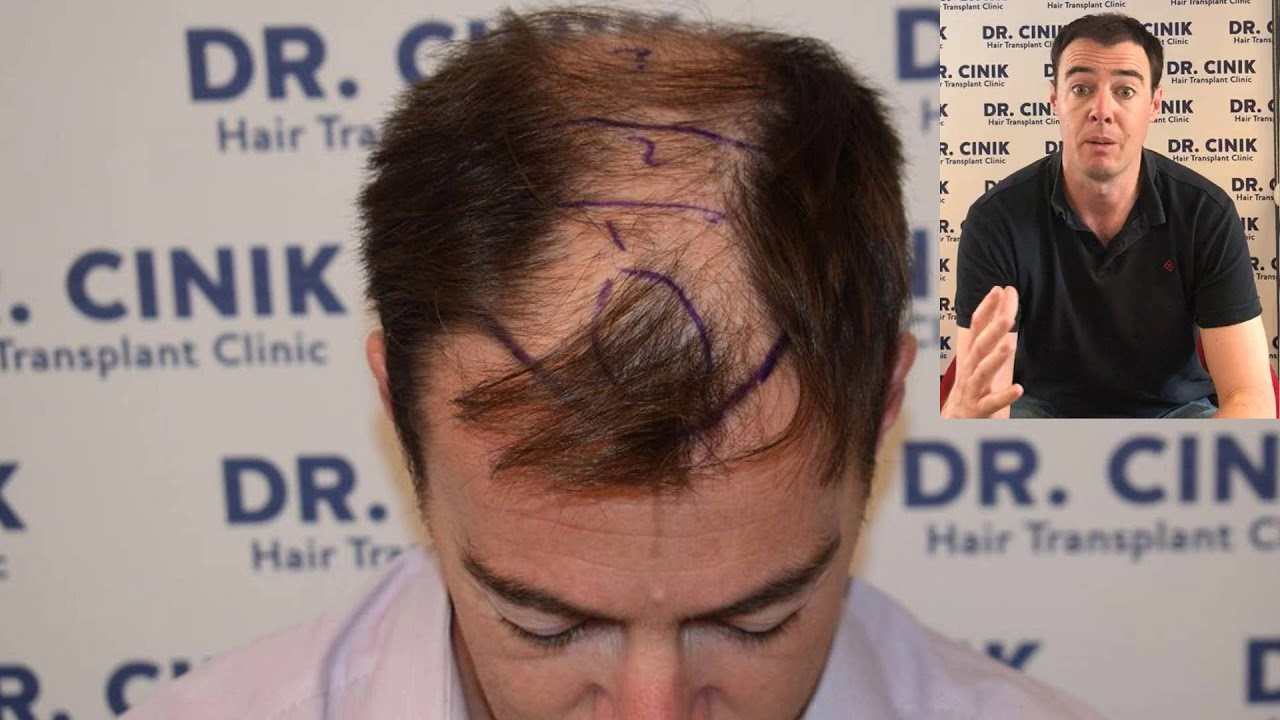 Photo Of Zain Hair Esthetic Center İstanbul Turkey Transplant