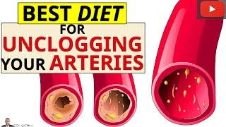 » Best Diet For Removing Calcium Deposits & Plaque Buildup From Your Blocked Arteries thumbnail