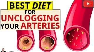 Best Removing Calcium Deposits Plaque Buildup Your Blocked Arteries
