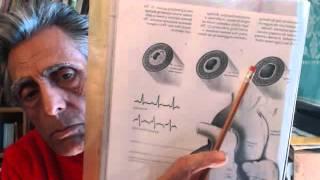 Болезни сердца - мерцательная аритмия