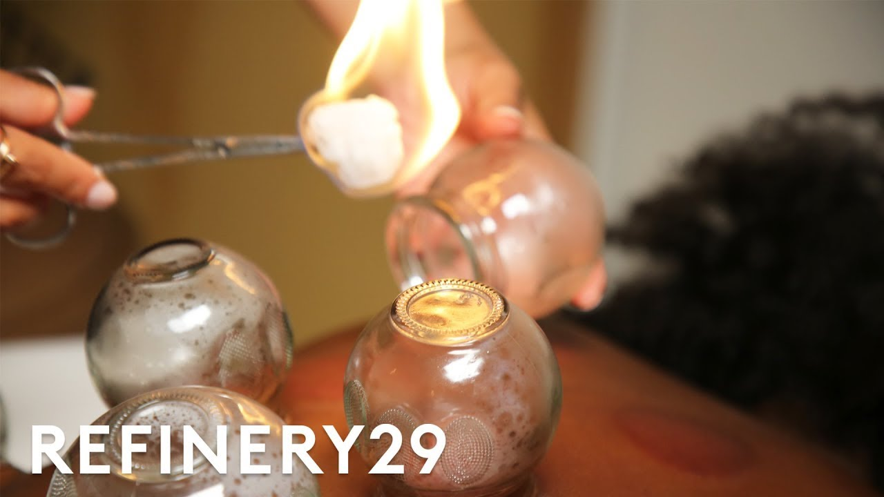 I Tried Cupping Therapy | Macro Beauty