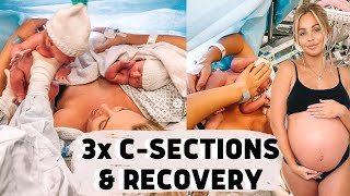 MY C SECTION EXPERIENCE & RECOVERY | Lucy Jessica Carter