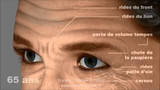 Techniques de rajeunissement du visage en Médecin Esthétique Aix-en-Provence