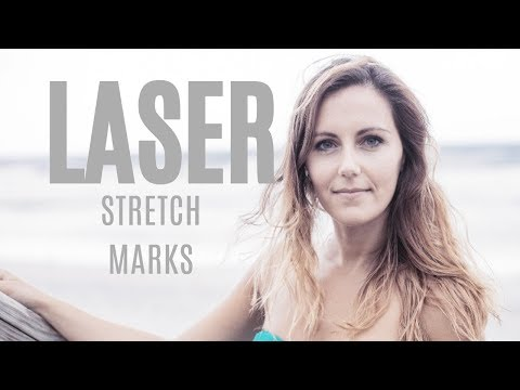 How-to: Stretch Mark Removal With Laser Treatment