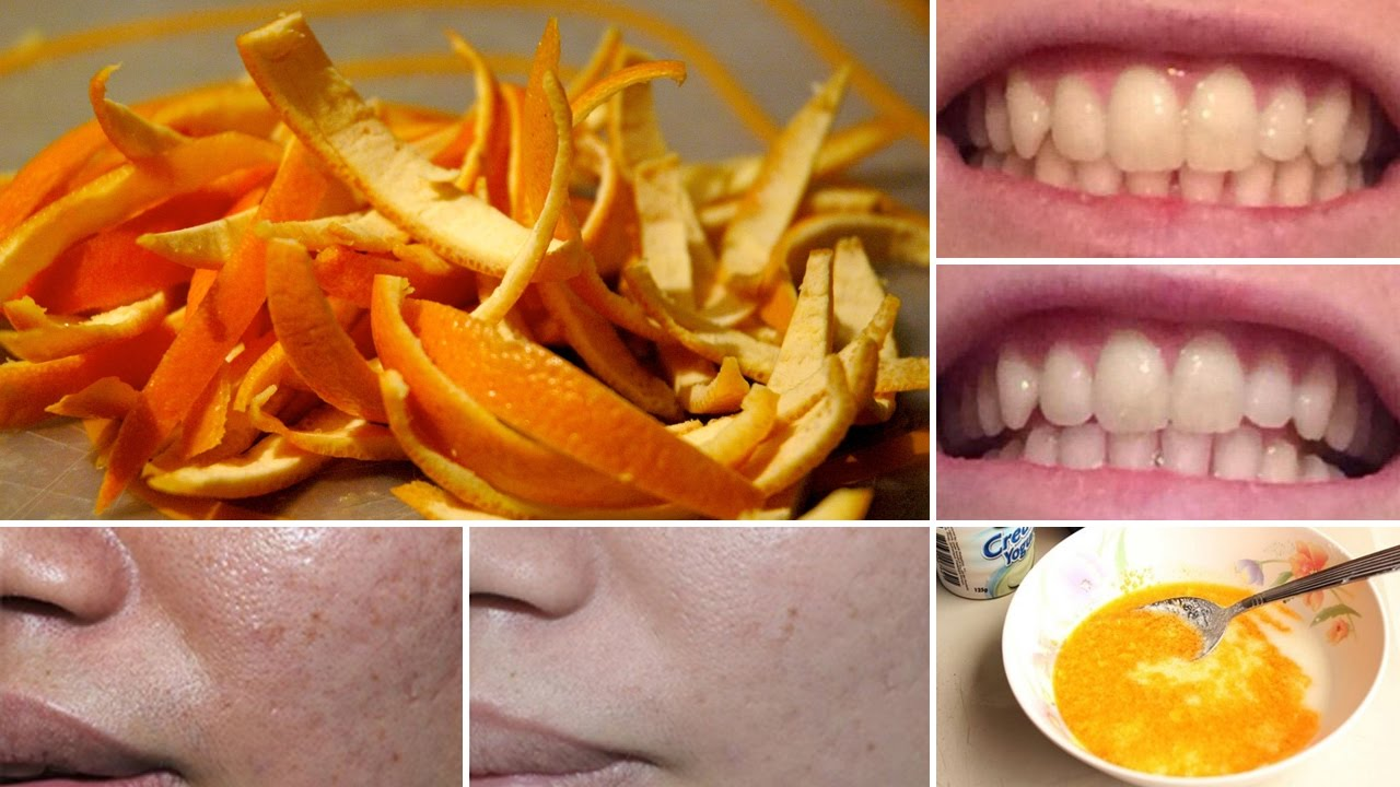 6 Amazing Health Benefits and Uses of Orange Peels