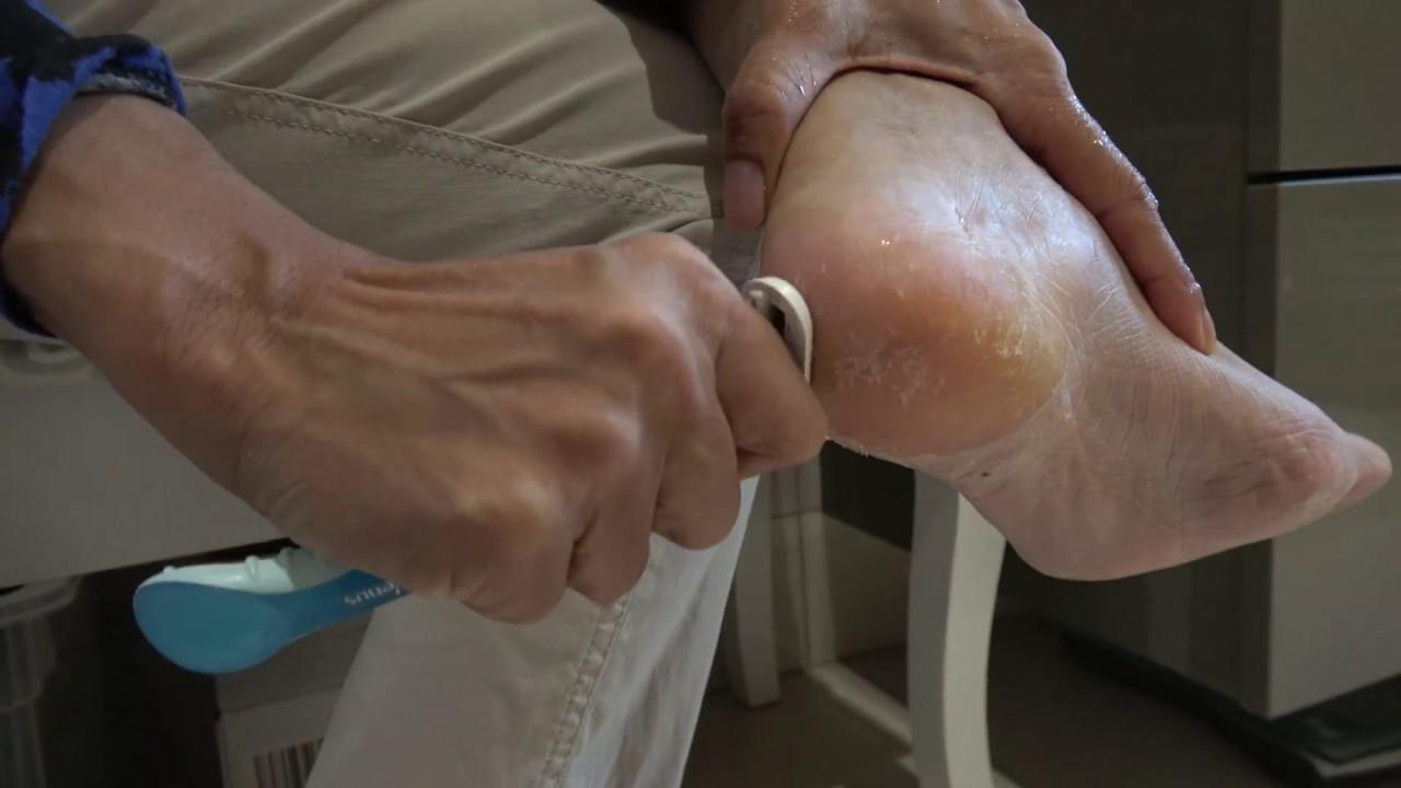 Astuce Et Solution Rapide Pour Enlever Les Peaux Mortes Des Pieds Baby Foot Peel