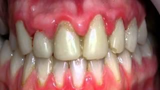 видео Заболевания десен: гингивит, пародонтит (воспаление десен), пародонтоз