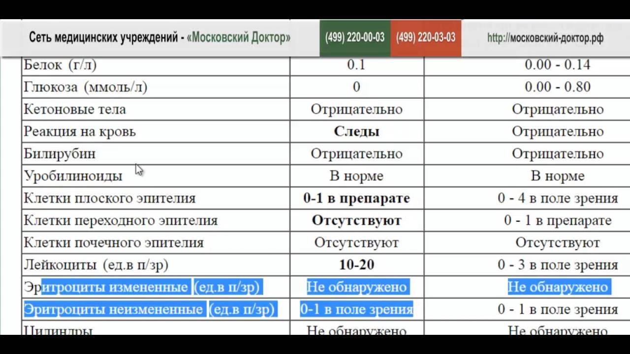 Анализ мочи нечипоренко-плоский эпителий Справка о надомном обучении Бескудниковский район
