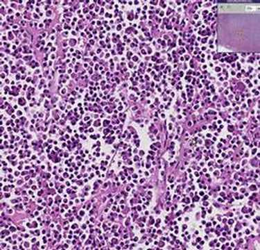 Histopathology Nose--Extramedullary plasmacytoma - YouTube