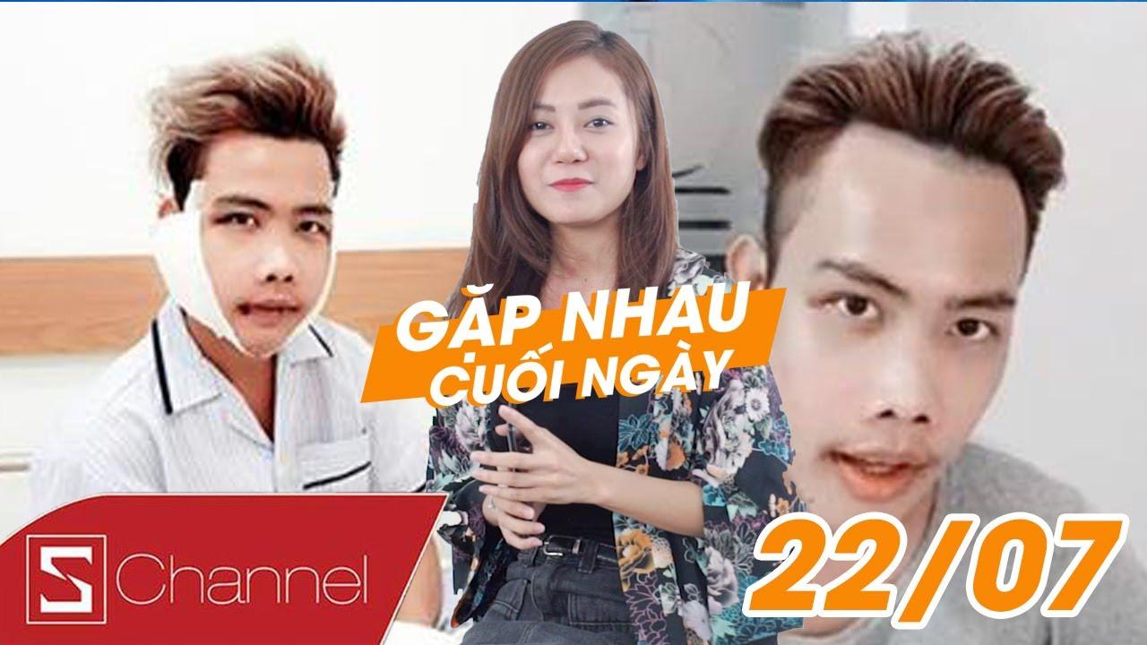 Schannel - #GNCN 22/7: Bất ngờ trước nhan sắc của Tùng Sơn sau khi phẫu thuật thẩm mĩ!