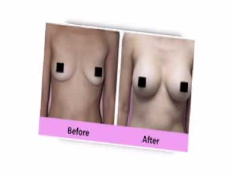 Breast Actives Review Before and After