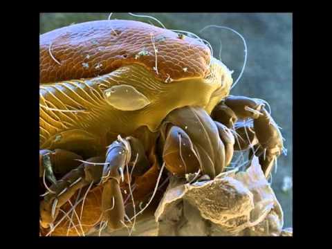 Микроорганизмы под микроскопом - корпорация монстров ...
