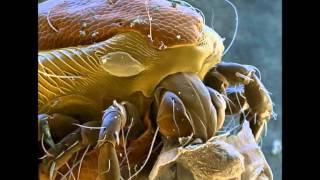 Микроорганизмы под микроскопом - корпорация монстр...