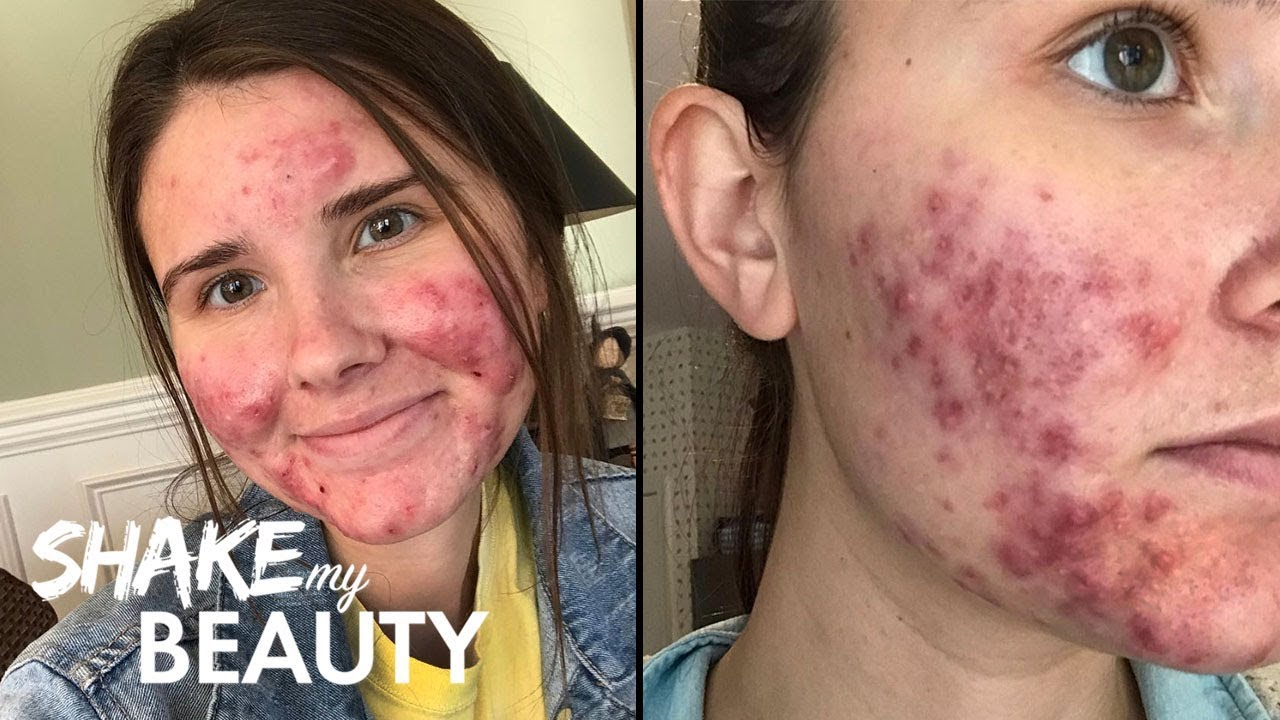 cute pretty girls with acne