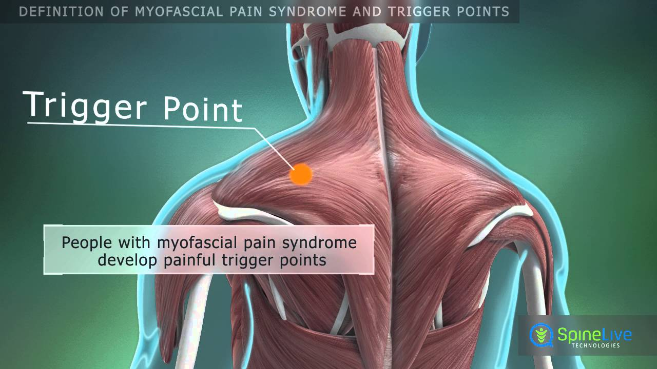 myofascial triggger point essay Myofascial pain can be local to the trigger point as well as produce a referred pain phenomena in the extremity that may mimic radicular symptoms of neurogenic origin.