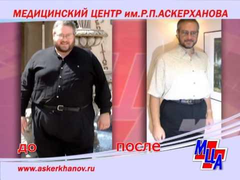 Хирургическое лечение ожирения. Медицинский центр имени Р.П. Аскерханова. Махачкала