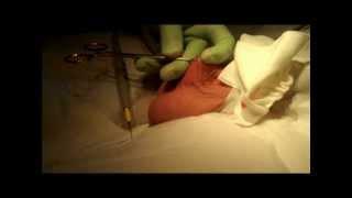 VASECTOMY SUMMARY VIDEO  --  NO NEEDLE NO SCALPEL TECHNIQUE    MONTREAL DR  ZORN