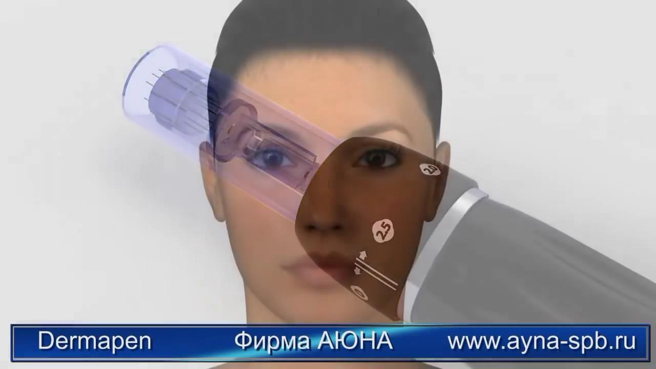 Аппарат фракционной мезотерапии Dermapen Dr. Pen Ultima с .