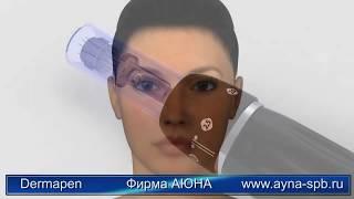 Аппарат фракционной микроигольчатой мезотерапии