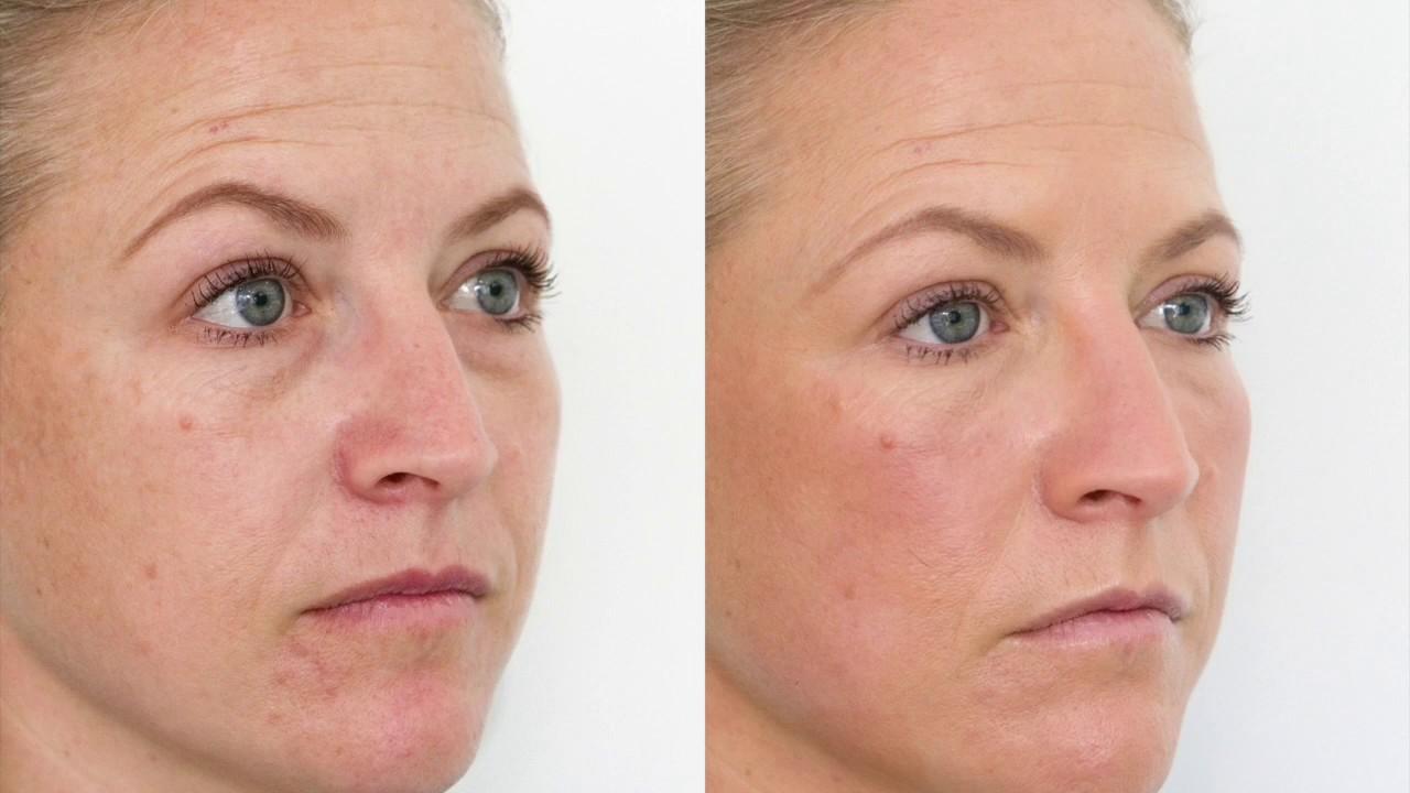Dermal Fillers for Tear Troughs – The Cosmetic Studio Noosa