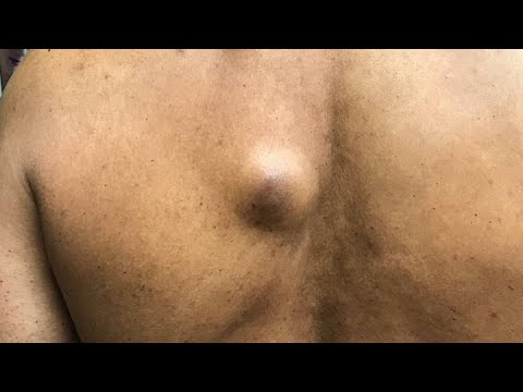 Explosive Cyst And Blackhead Pimple Popping - Pimple Popping Compilation