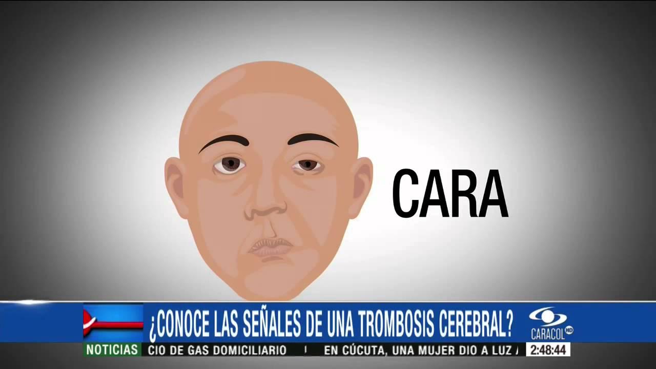 sintomas de una trombosis en la cara