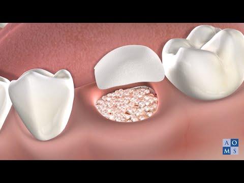 Instrucciones Post-Operatorias: Injerto del Hueso | Amarillo Oral & Maxillofacial Surgery
