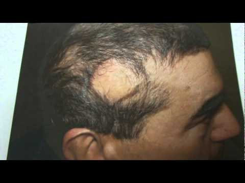 Hair Transplant Results Of Bald Hair Loss Birthmark Hair Restoration