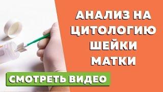 видео Статьи - Онкоцитология — что это такое