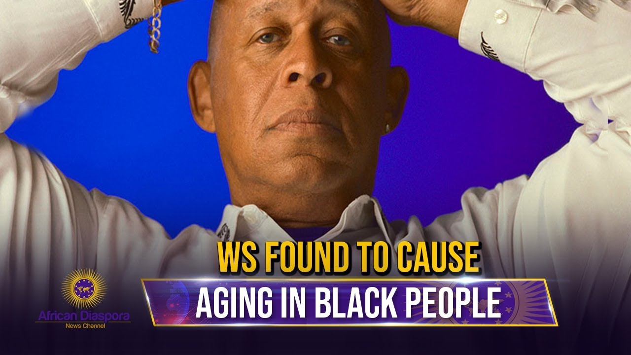 Study Show Discrimination Cause African Americans To Age Earlier Than Normal