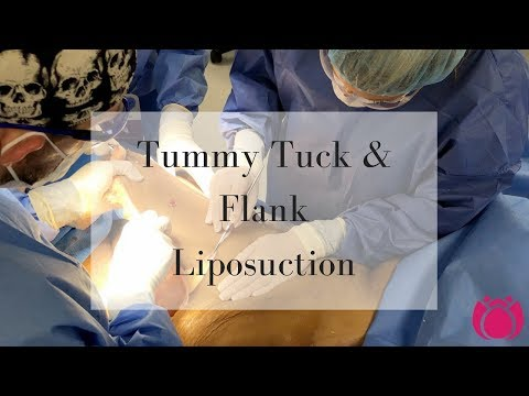 Tummy Tuck and Flank Liposuction | Cosmetic Surgery Affiliates