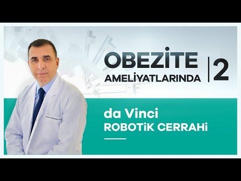 ''da Vinci Robotik Cerrahi'' Ile Obezite Tedavisinde Ne Kadar Etkili? - Prof. Dr. Abdülkadir Bedirli