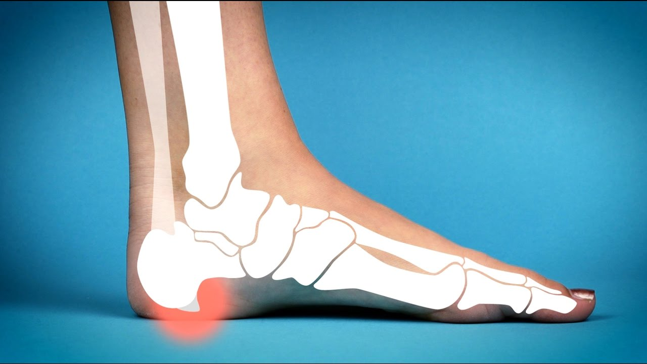 Spurs natural bone remedies for Home Remedies
