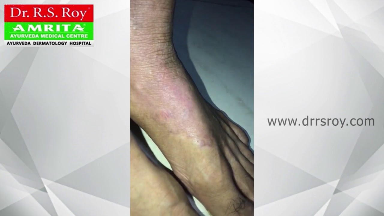 Ayurveda Treatment for Eczema in Kerala | Dermatitis Before and After  Treatment