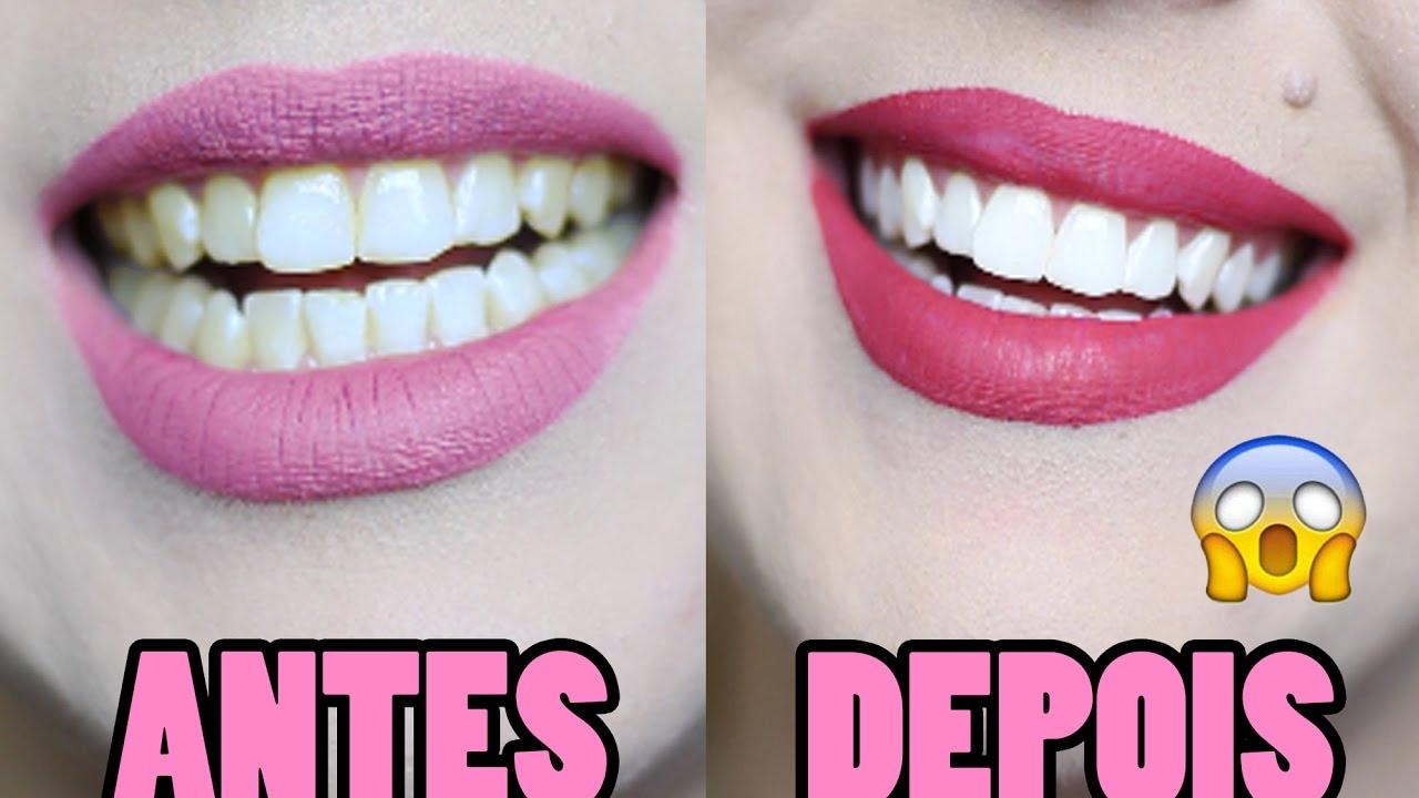 6 Formas De Clarear Os Dentes Que Voce Precisa Conhecer Youtube