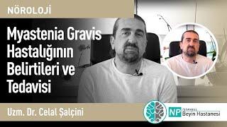 Myastenia Gravis Hastalığının Belirtileri ve Tedavisi