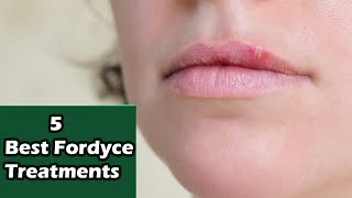 5 Best Fordyce Spots Treatment | Fordyce Spots On Lips | Fordyce Spots by  Our Remedy