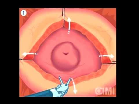 Robotic Simple Prostatectomy Robotic Surgery Los Angeles