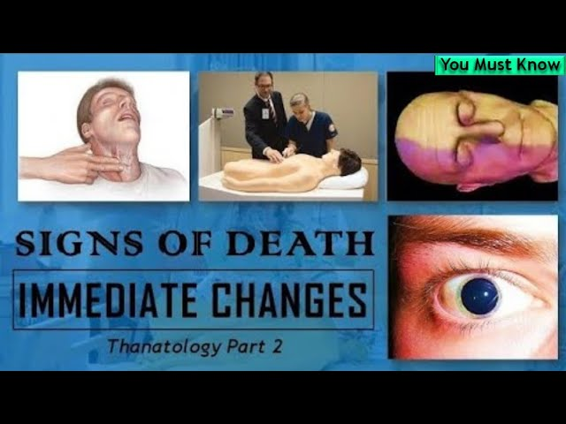 Immediate Changes | Signs of Death | Thanatology | Forensic Medicine