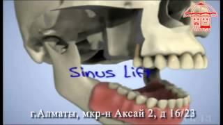 Казахстан Алматы Имплантация, Стоматологическая клиника АКСАЙ(, 2013-09-23T14:04:24.000Z)
