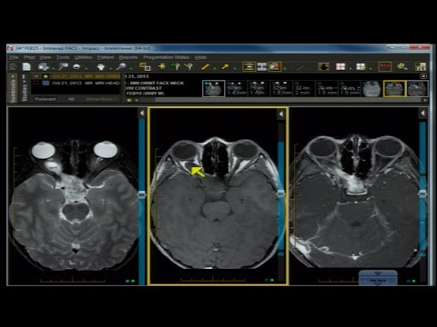 Neuro Imaging Board and Recredentialing Review 10 thumbnail