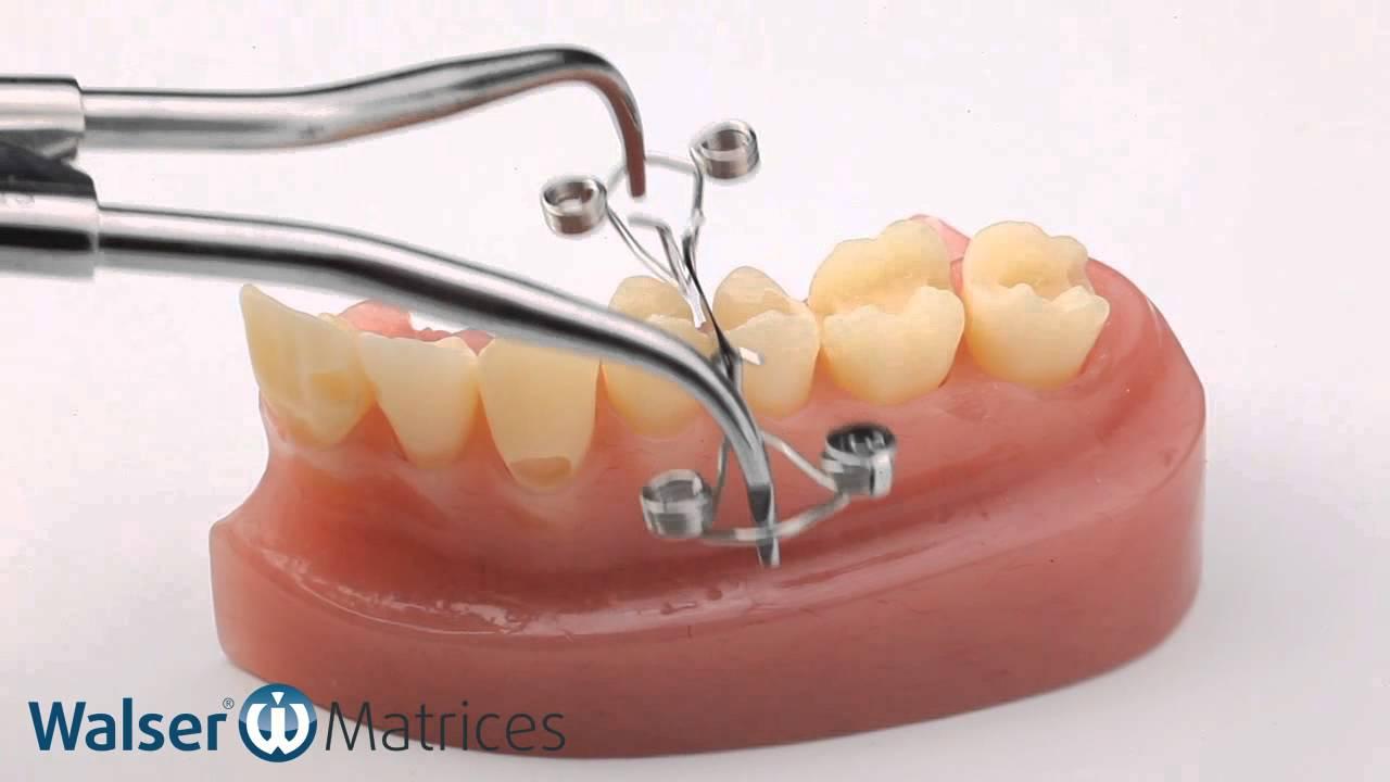 Walser 174 Sectional Matrix System Application X Form Dental