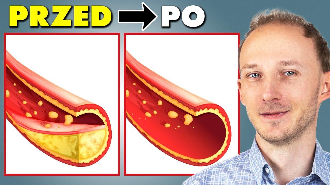 Download Jak odmłodzić i oczyścić tętnice: 14 sposobów, jak dbać o tętnice i krążenie | Dr Bartek Kulczyński