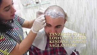 Saç Ekimi 17. Gün ( İlk Yıkama - Kabuk Dökme ) -   Hair Transplant