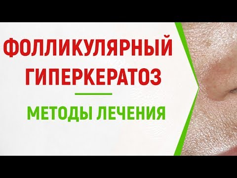 Фолликулярный гиперкератоз: ТОП методов лечения