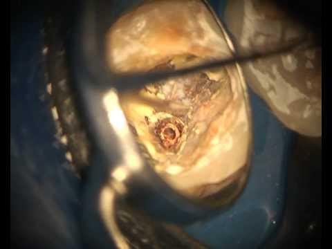 Пломбирование корневых каналов зубов